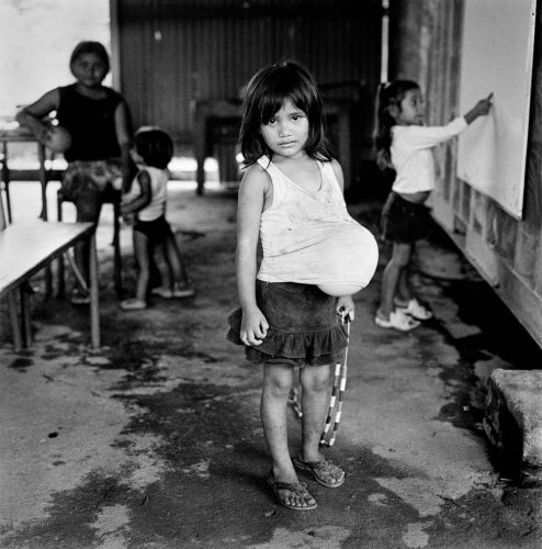 Black and White Picture of Girl With Balloon Under Shirt Holding Jump Rope Nicaragua